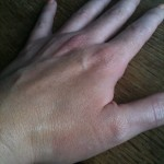 My mottled paw wearing Superdrug BB cream swatch